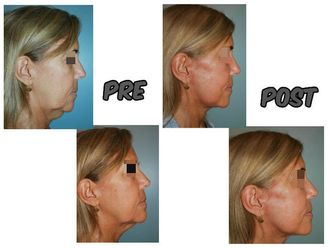 Rejuvenecimiento facial - 623392