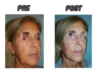 Rejuvenecimiento facial - 623393