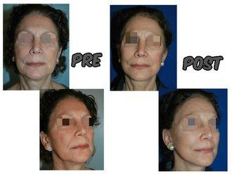 Rejuvenecimiento facial - 623394