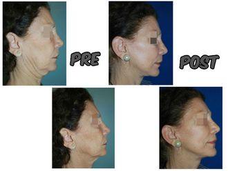 Rejuvenecimiento facial - 623395