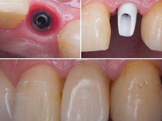 Implantes dentales-641659