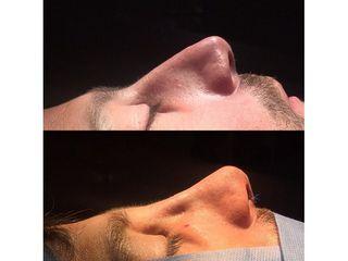 Rinoplastia - Dr. Ignacio Amado