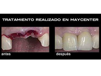 Implantes dentales - 498551