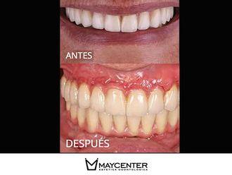 Implantes dentales - 590314