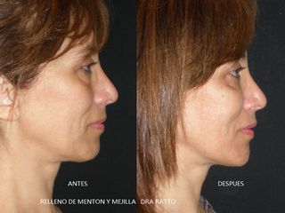 RELLENO DE MENTON , MEJILLA Y LINEA MANDIBULAR - BIOPLASTIA LADO DERECHO