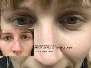 Angioma nasal