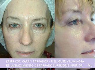 Láser CO2 - Dra. Adriana Ratto