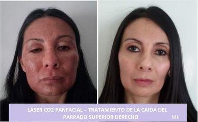 LASER CO2 -Ptosis de parpado superior derecho - Dra. Adriana Ratto