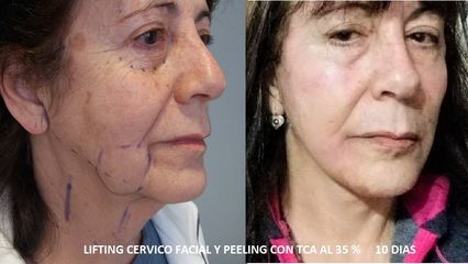 Lifting  + Peeling - Dra. Adriana Ratto