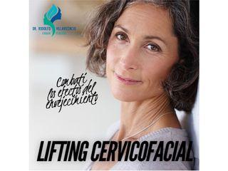 Lifting cervicofacial