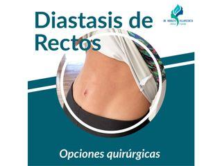 DIASTASIS DE RECTOS