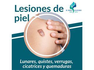 Lesiones de piel