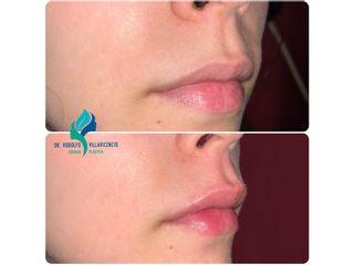 Relleno de labios con ácido hialuronico