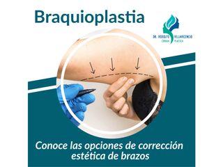 Braquioplastia: Corrección estética de brazos