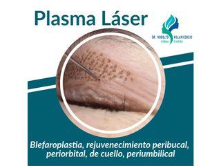 Plasma Láser