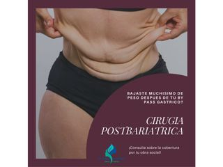 Cirugía Postbariatrica
