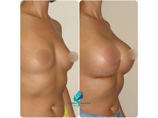 Implantes mamarios 400cc - Dr. Rodolfo Villavicencio