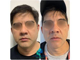 Bichectomia - Dr. Rodolfo Villavicencio