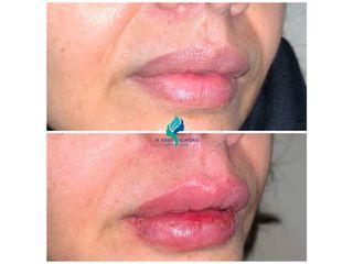 Relleno de labios con Ácido Hialuronico - Dr. Rodolfo Villavicencio