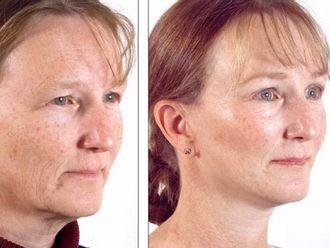 Rejuvenecimiento facial-606694