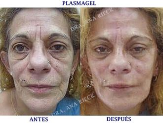 Rellenos faciales - 624011