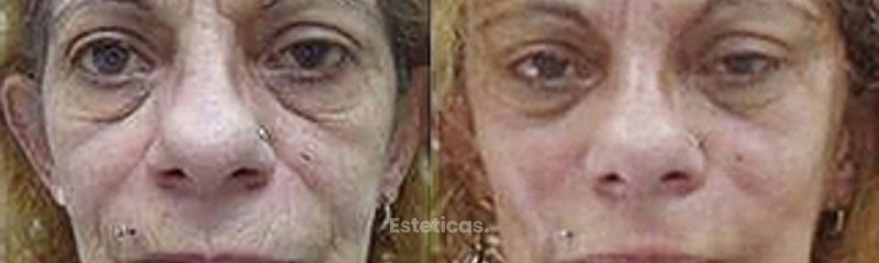 PLASMAGEL: antes del tratamiento e inmediatamente después de realizado.