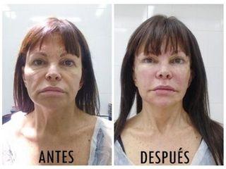 Lifting con células madre FAMI (Facial Autograft Muscle Injection)- Rieck Klinik Medic