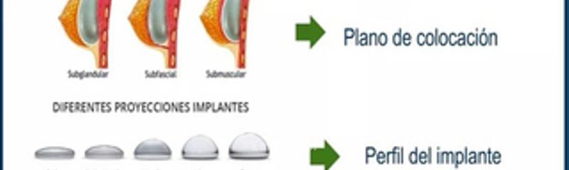 Qué tenés que saber previo a la Cirugía de Aumento Mamario?