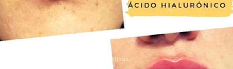 Relleno labios con Ácido Hialurónico