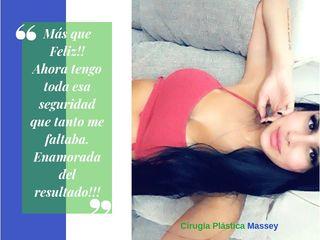 Cirugía de Aumento Mamario!!! Naturalidad y armonía en el cambio!!!