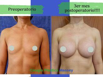 Aumento mamas - 635271