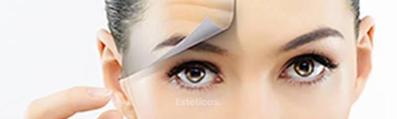 Aplicación de Botox y Xeomin para las arrugas