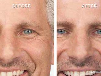 Botox - 630452