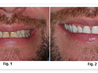 Blanqueamiento dental-271071