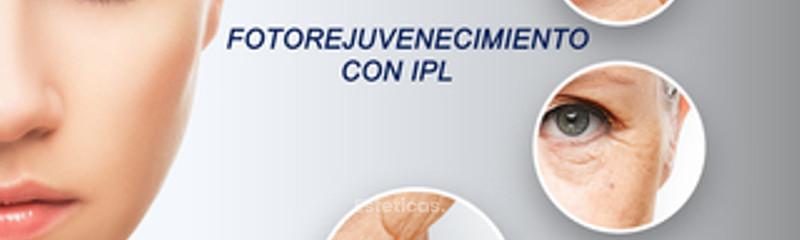 Fotorejuvenecimiento facial con IPL