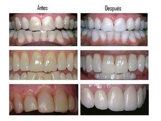 Blanqueamiento dental-336848