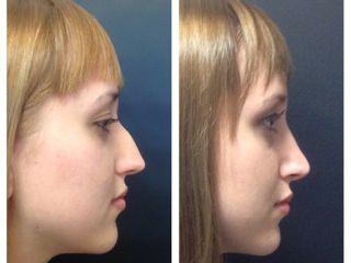 Pre y post quirúrgico de Rinoplastia
