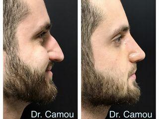 Dr. Emiliano Camou