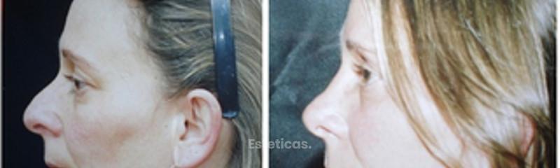 Cirugía de nariz - Antes y Después