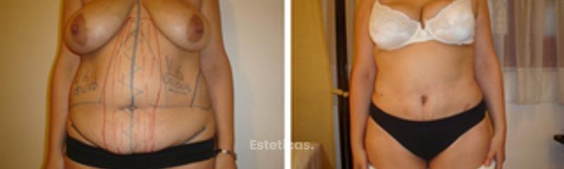 Abdominoplastia  - Antes y Después