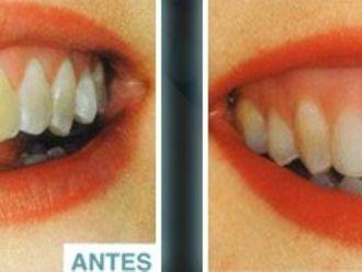 Blanqueamiento dental-275595