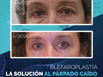 Blefaroplastia - 797745