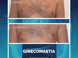 Ginecomastia - 797747