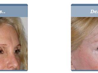 Rejuvenecimiento facial-280853