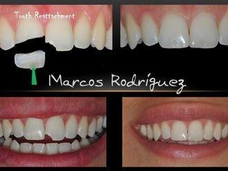 Odontología estética-444067