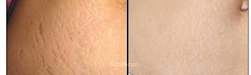 skinmedicalestrias