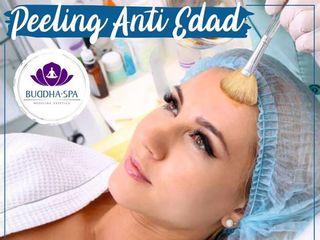 Peeling Anti Edad con Ácido Glicolico