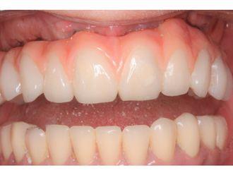 Prótesis dentales - 629724
