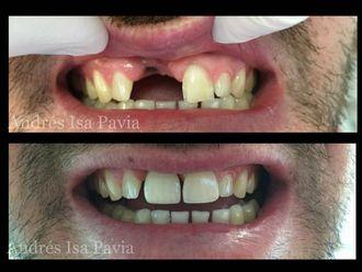 Implantes dentales-630057