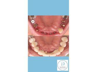 Implantes dentales-685214